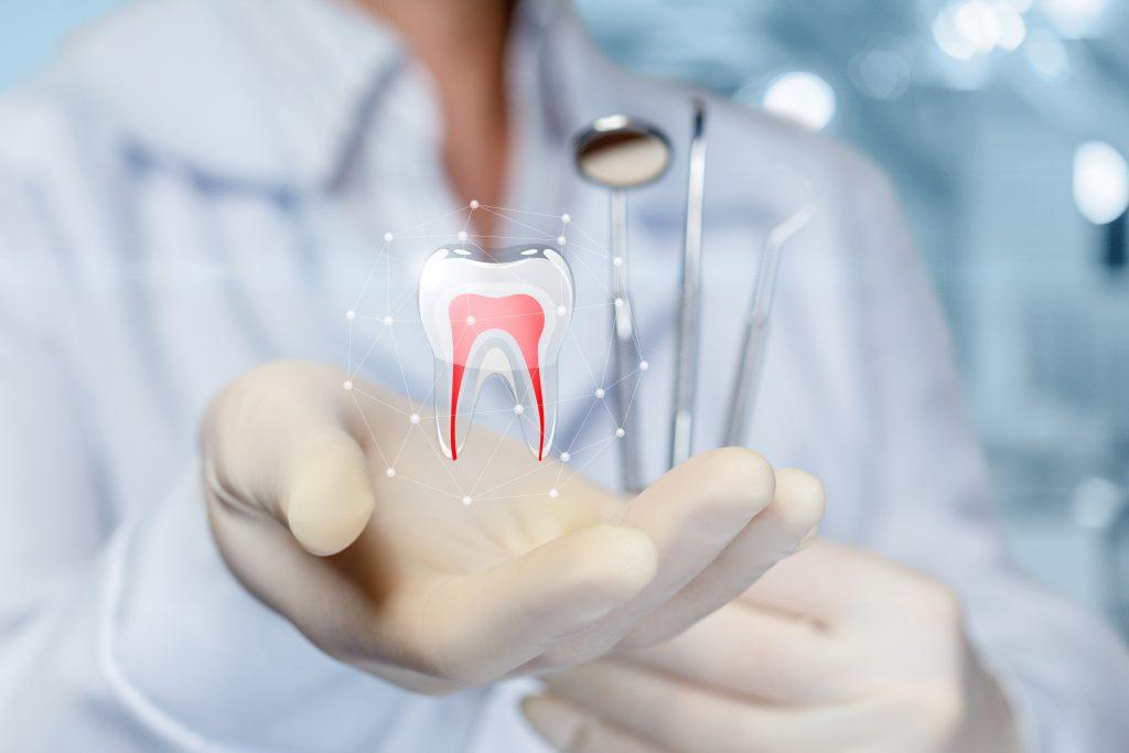 zahnarzt-wurzelbehandlung-endodontie