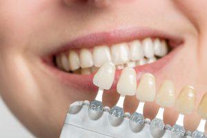 zahnarzt-zahnersatz-veneers
