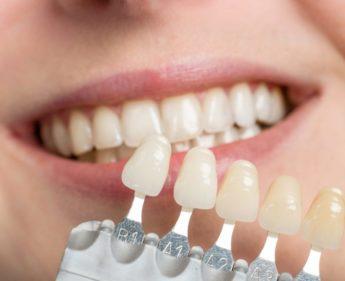 komposit-fuellung-zahnarzt